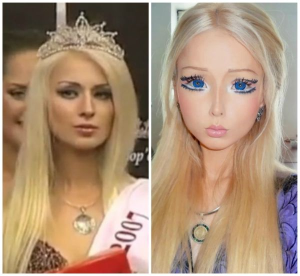 Valeria Lukyanova a.k.a Human Barbie - Before and After