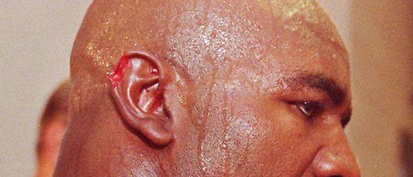 Evander Holyfield Ear On Canvas